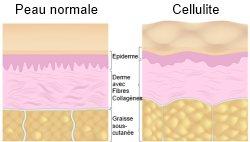 Perdre la cellulite : comment vaincre et éliminer la peau