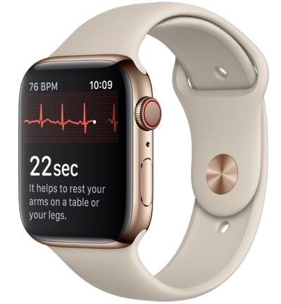 Electrocardiogramme affiché sur l'Apple Watch